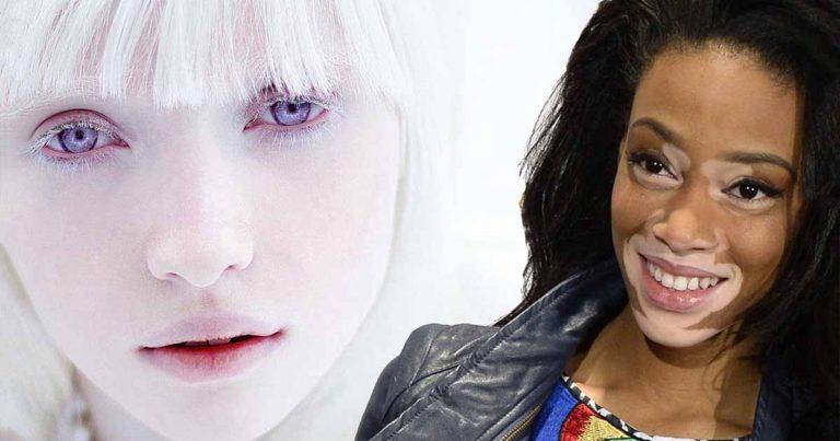 فتيات يمتلكن أغرب لون بشرة فى العالم