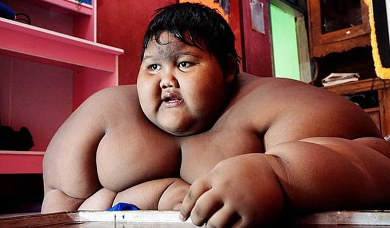 وصفوه بأثقل طفل في العالم سنة 2016، فقرر أن ينقص وزنه .. هكذا أصبح شكله الآن