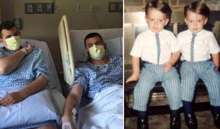 خسر وزنه ليتبرع بالكلى لأخيه التوأم